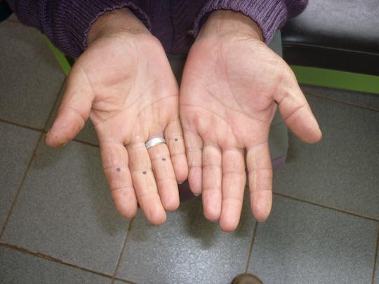 mission shiatsu perou beatrice bernard mai 2010 ; séance de shiatsu ; soulager les douleurs aux mains par la moxibustion
