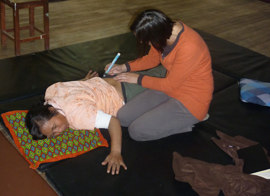 mission shiatsu perou beatrice bernard mai 2010 ; moxibustion pour soulager une lombalgie